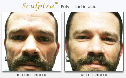 Sculptra Facial Fillers